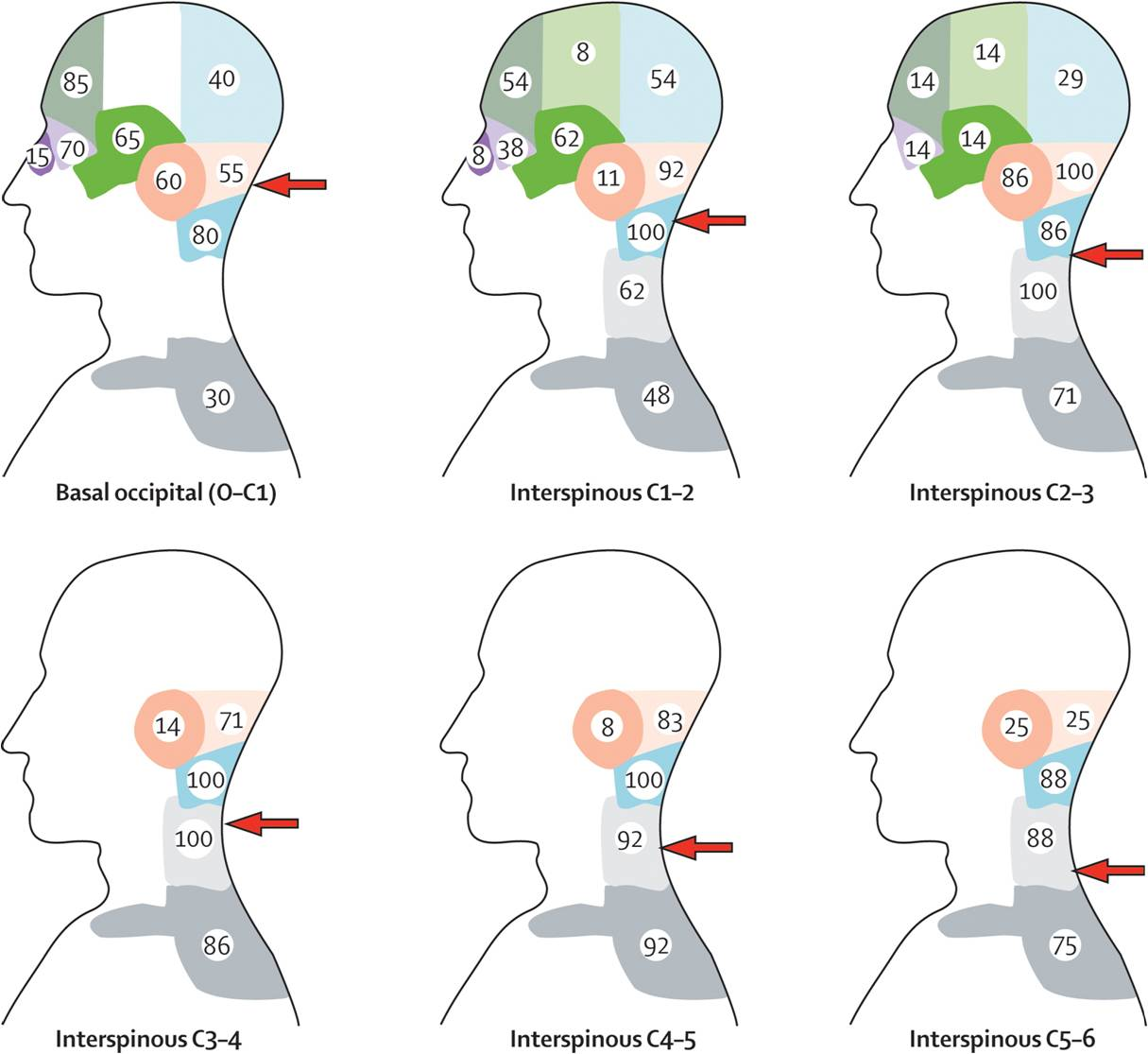 Cervicogenic Headache - Morphopedics