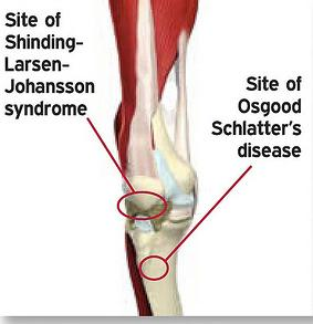 Osgood Schlatter's Disease - Morphopedics