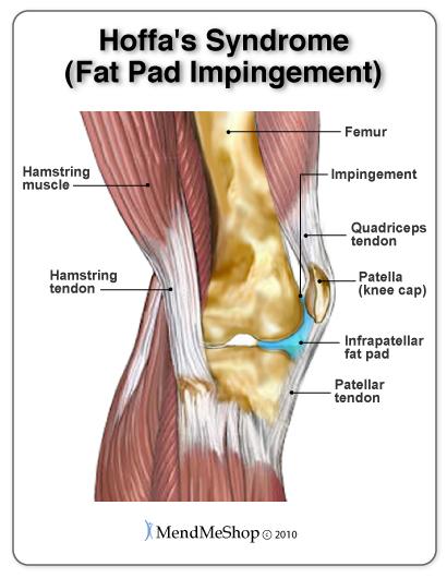 Osgood schlatters disease morphopedics hoffas syndrome infrapatellar fat pad impingementg ccuart Images
