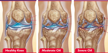 Crepitus Knee Natural Treatment