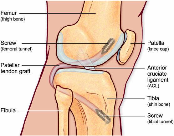 Posterior Cruciate Ligament Strain - Morphopedics