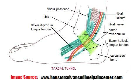 tarsal_tunnel2%281%29.jpg