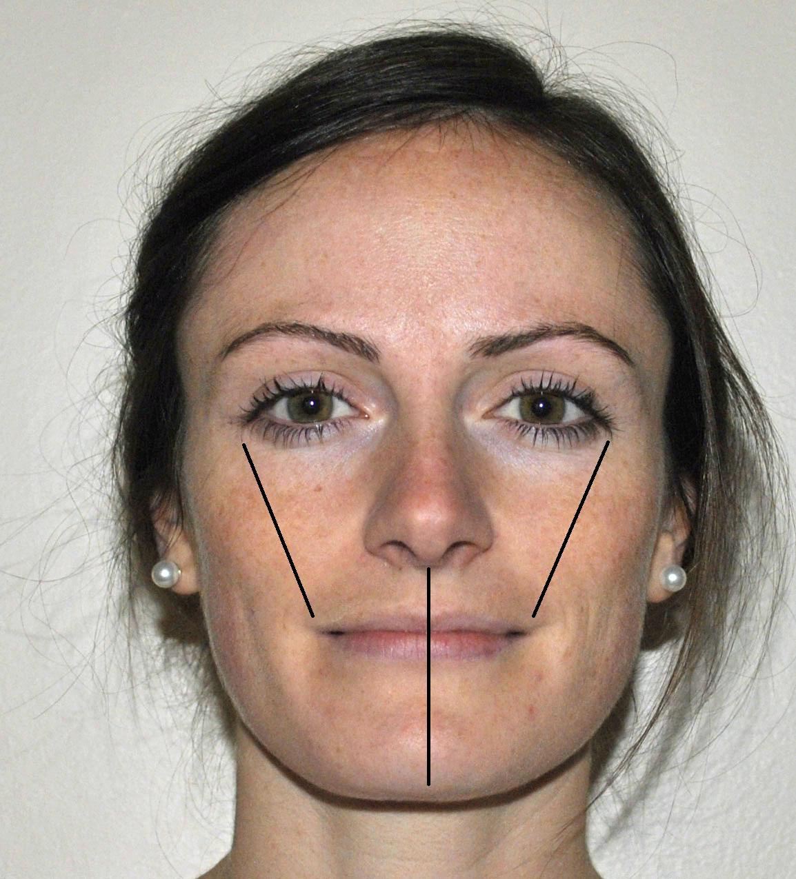Как сделать нос более ровным