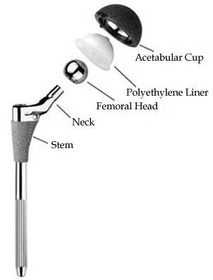 Total Hip Arthroplasty - Morphopedics