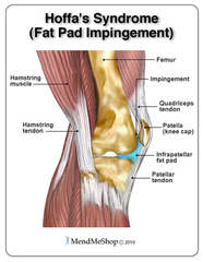 hoffas-syndrome-infrapatellar-fat-pad-impingement.jpg